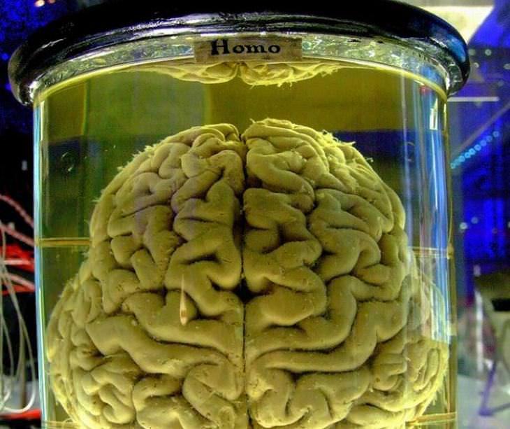 Cerebro en la cuba