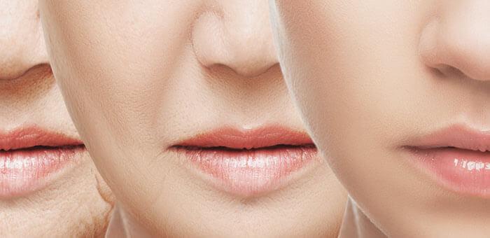 Arrugas: tratamientos y prevención